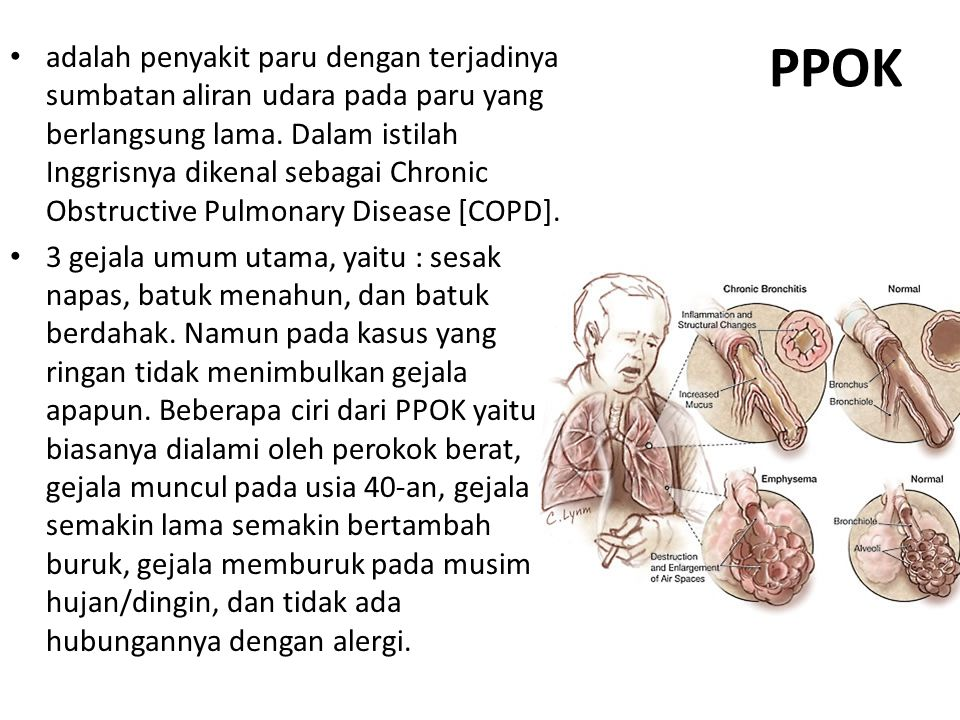 adalah penyakit paru dengan terjadinya sumbatan aliran udara pada paru yang berlangsung lama. Dalam istilah Inggrisnya dikenal sebagai Chronic Obstructive Pulmonary Disease [COPD].